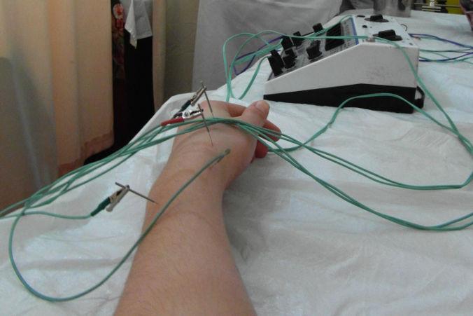 acupuntura eléctrica china